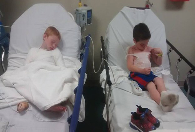 Boys Suffer Third-Degree Burns After Being Left Outside By Their Day Care