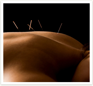 img_acupuncture